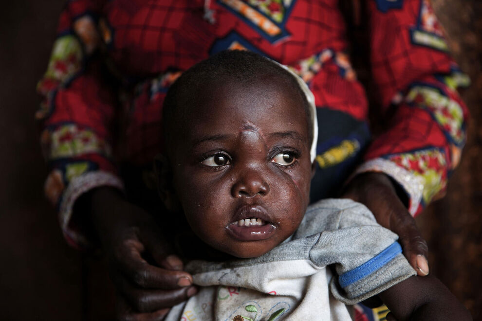 Rachel Ngabusi, 2, Djugun siirtymäleirillä Buniassa, Kongon demokraattisessa tasavallassa. Rachelin äiti ja kolme veljeä kuolivat Ituriin tehdyissä iskuissa vuoden 2018 alussa. © UNICEF/UN0270764/Oatway