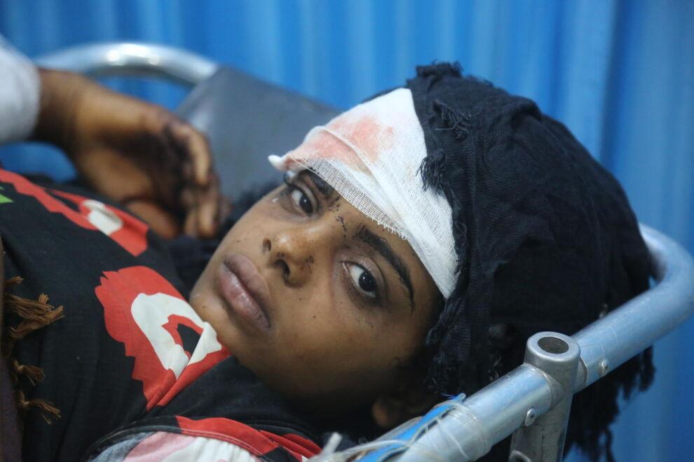 Haavoittunutta tyttöä hoidetaan Jemenissä Althwaran sairaalassa Hodeidahissa 9. kesäkuuta. Hän haavoittui, kun hänen perheensä yritti paeta taisteluita Aljahin alueelta Hodeidahissa. UNICEF toimitti sairaalaan muun muassa sidostarpeita, antibiootteja ja tarvikkeita suonensisäiseen nesteytykseen.