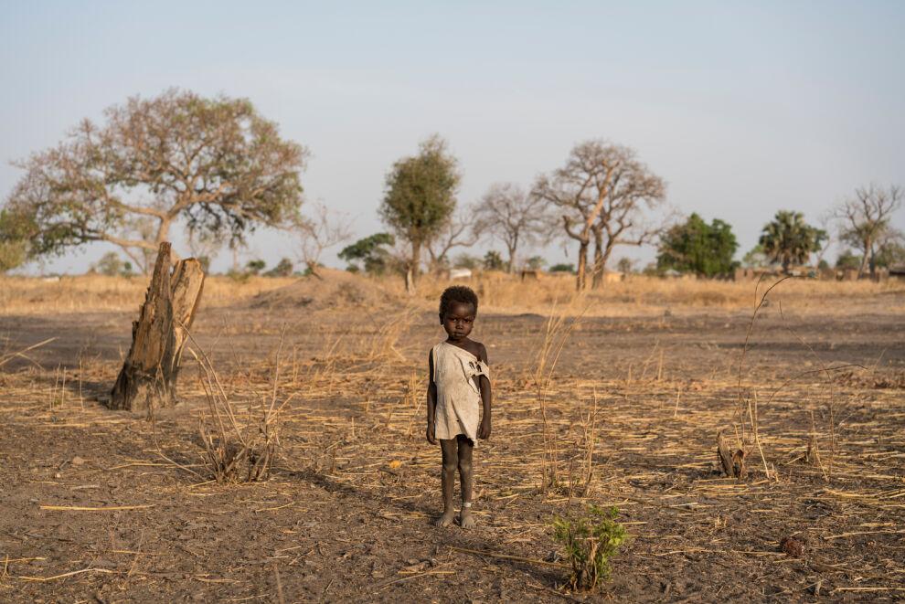 Eteläsudanilaisen Gielin nilkassa oleva valkoinen ranneke on merkki siitä, että hän on saanut apua aliravitsemukseen. Kuva: © UNICEF/UN056591/Knowles-Coursin
