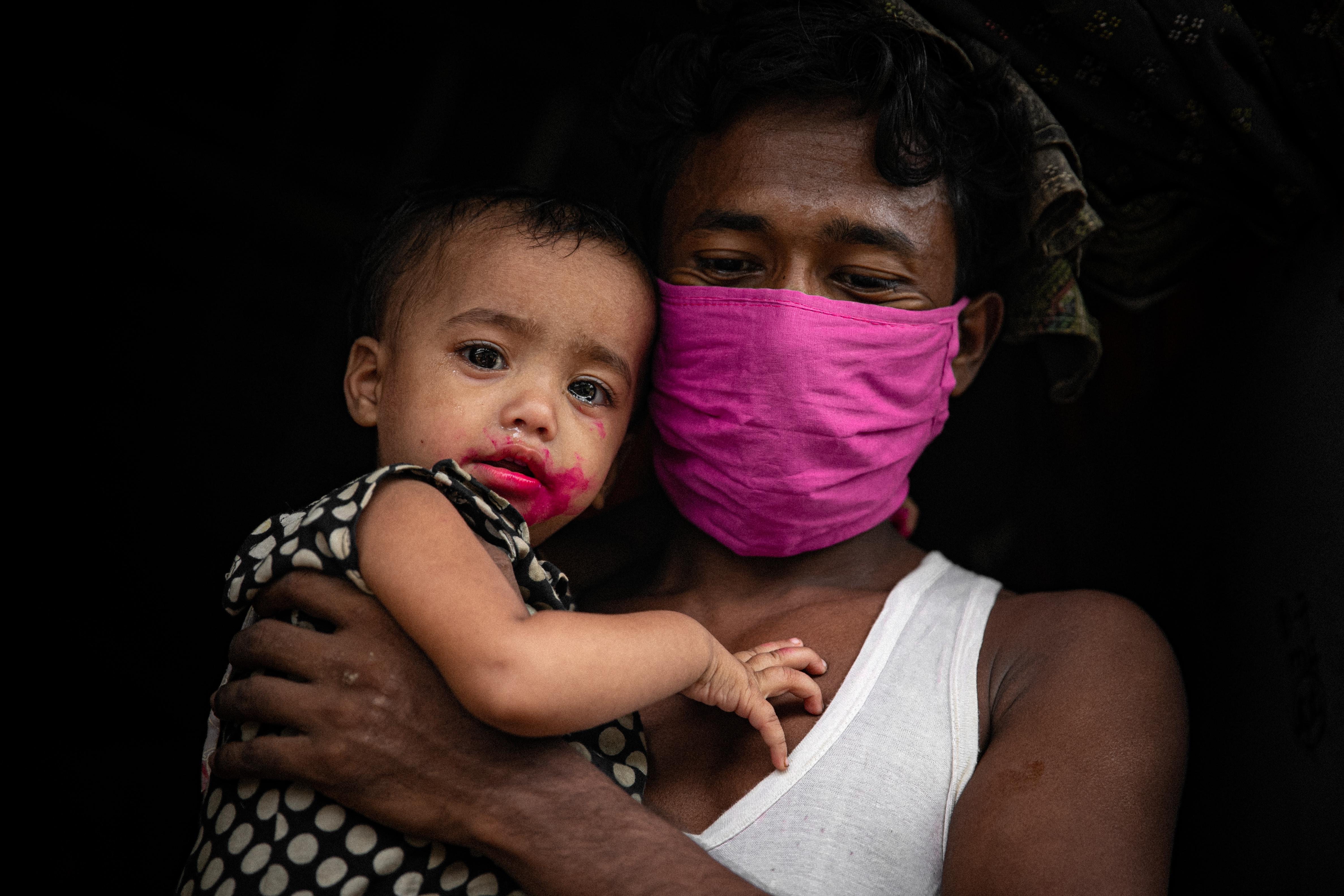 Isä pitelee lasta, jolla on punainen suupieli A-vitamiinirokotuksen jälkeen