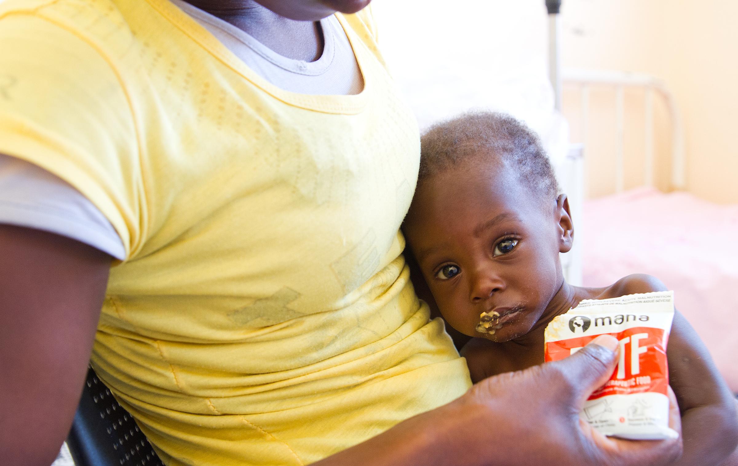 Pieni Marcelino äidin sylissä ja pussi maapähkinätahnaa. © UNICEF/UN023908/Clark