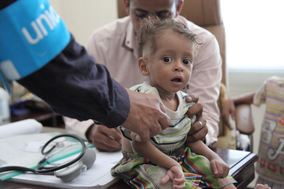 Pieni poika aliravitsemustarkistuksessa Jemenissä. 182 000 vakavasta aliravitsemuksesta kärsivää jemeniläislasta oli saanut UNICEFin järjestämää hoitoa lokakuuhun 2016 mennessä. © UNICEF/UN050302/Al-Zikri