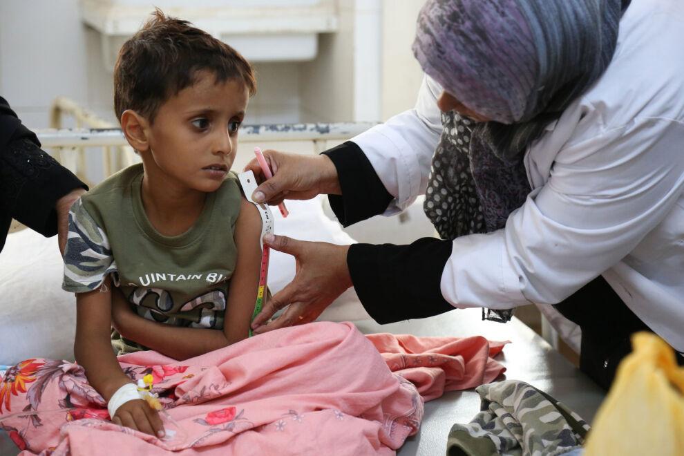 Kolerasta kärsivää lasta tutkitaan aliravitsemuksen varalta Alsadaqahin sairaalassa Jemenissä. © UNICEF/UN078075/Fuad