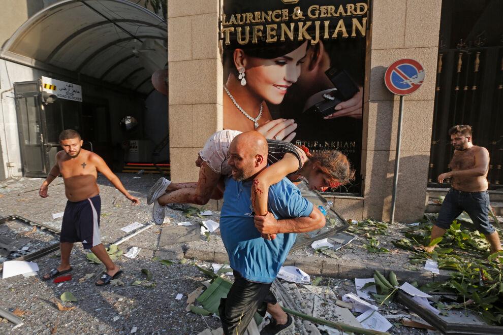 Mies kantoi räjähdyksissä loukkaantunutta tyttöä tiistai-iltana Beirutissa. © UNICEF/UNI356270/Tahtah/AFP